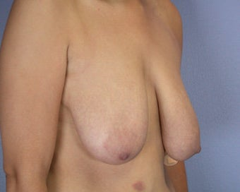 Breast Reduction before 285300