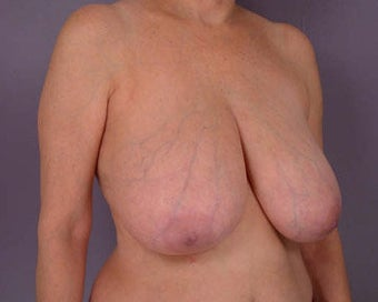 Breast Reduction before 285308