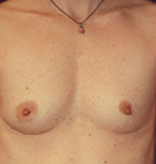 Breast implant removal after 316564