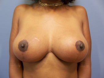 Breast Implant Removal and Breast Lift after 589921