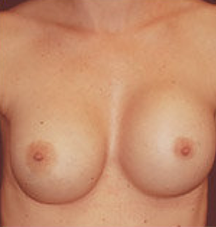 Breast implant removal before 316564