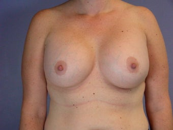 Circumareolar Breast Lift with Breast Implants after 309736