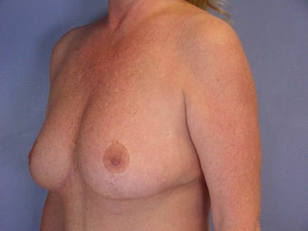 Breast Lift after 321469