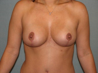 Breast lift after 403877