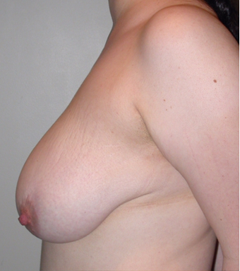 Vertical Breast Lift before 275507