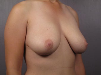 Breast Lift  before 302534
