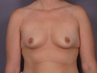 Circumareolar Breast Lift with Breast Implants before 309736