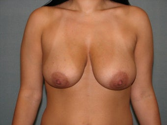 Breast lift before 403877