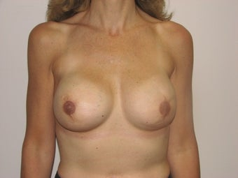 Bilateral Breast Reconstruction with Implants and Allograft after 387559