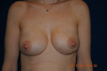 Breast Reconstruction after 398870