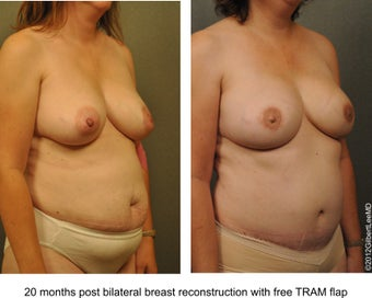 Breast Reconstruction after 529310