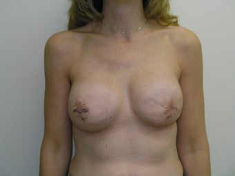 Bilateral Breast Reconstruction with Implants and Allograft before 387559