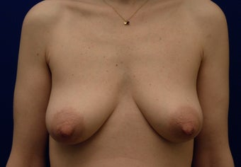 Breast Reconstruction before 398870