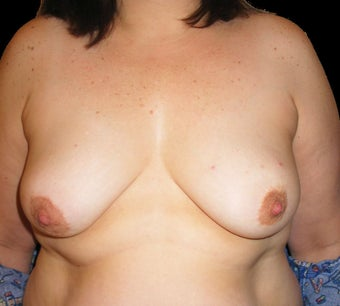 Bilateral breast reconstruction with abdominal flap before 476713