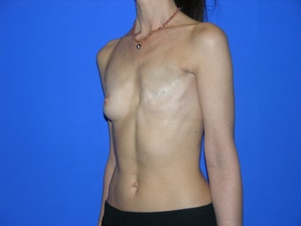 Breast Reconstruction before 482770