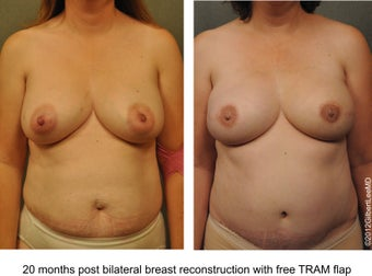 Breast Reconstruction before 529310