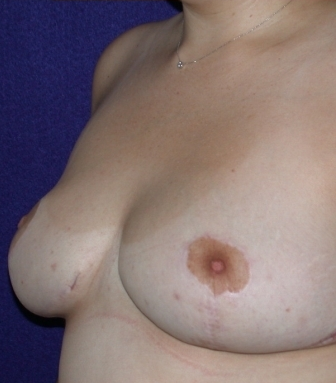 Breast Reduction after 520396