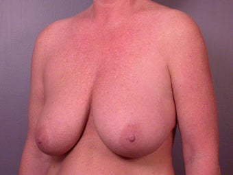Breast Reduction before 321449