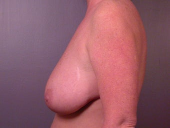 Breast Reduction before 321450