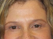 Brow Lift after 541473