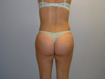 Buttock augmentation by fat transfer after 163645