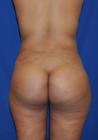 Buttock Augmentation using Fat Transfer after 253873