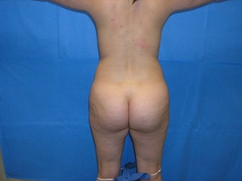 Buttock augmentation by fat transfer before 163645