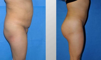 Butt Augmentation before 256429