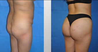 Butt Augmentation before 256430