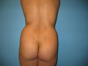 Buttock augmentation (Brazilian buttock lift) before 287962
