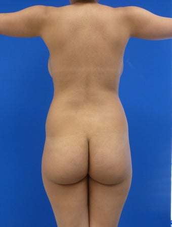 Buttock Augmentation before 626014