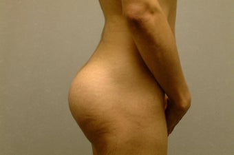 Brazilian Butt Lift/Implants after 410598