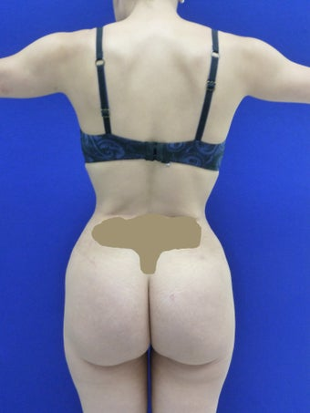 Butt Augmentation after 489491