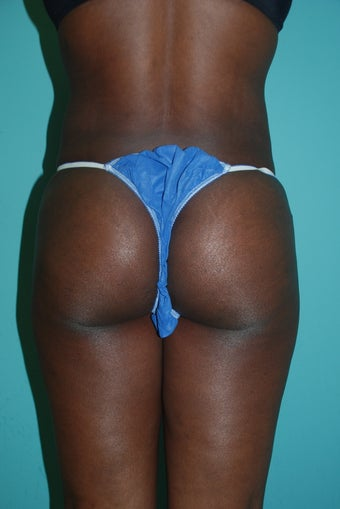 Buttock Augmentation after 534402