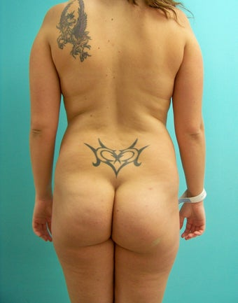 Buttocks Augmentation- Brazilan Butt Lift before 360026