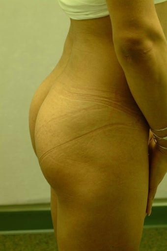 Brazilian Butt Lift/Implants before 410598