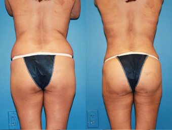 Buttock Augmentation with fat transfer, liposuction abdomen and hips before 480317