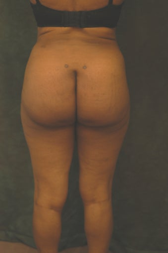 Women's Buttocks Augmentation  518126