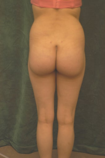 Women's Buttocks Augmentation  518136