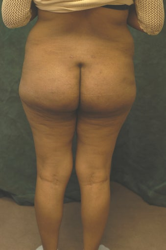 Women's Buttocks Augmentation 518137