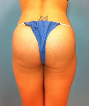 Gluteal Implants after 539054