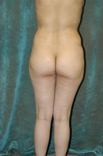 Butt Augmentation 510793