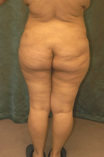 Women's Buttocks Augmentation  before 518121