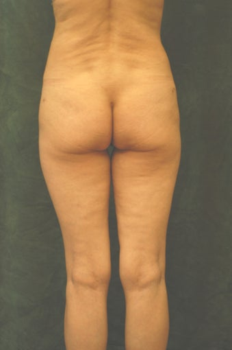 Women's Buttocks Augmentation   518131