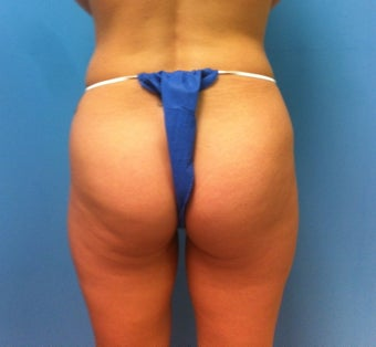 Gluteal Implants before 539054