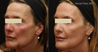 Fraxel Repair for Sun Damage and Minor Laxity before 110208