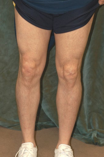 Men's Calf Augmentation  519057
