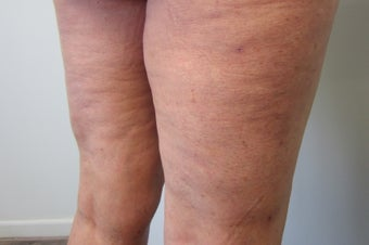 Cellulaze after 583409