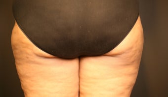 Cellulite Treatment after 602206