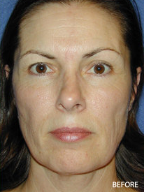 Cheek Impant Surgery before 328073